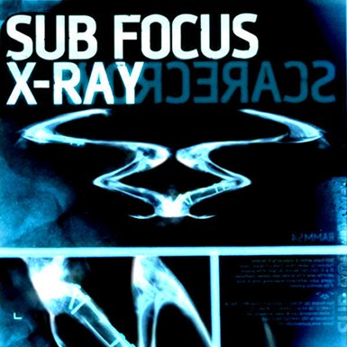 X Ray Ringtone Download Free